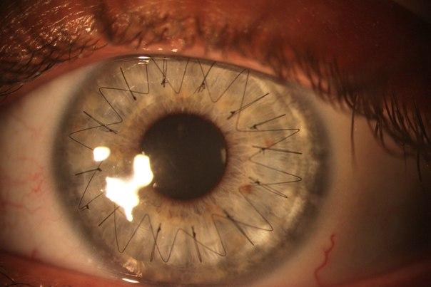 На этой невероятной макро-фотографии человеческого глаза
